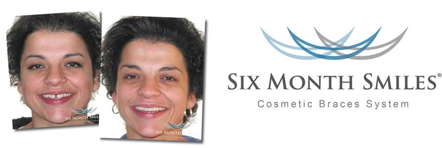 Orthodontist - Six Month Smiles Pemberton, Wigan, Lancashire